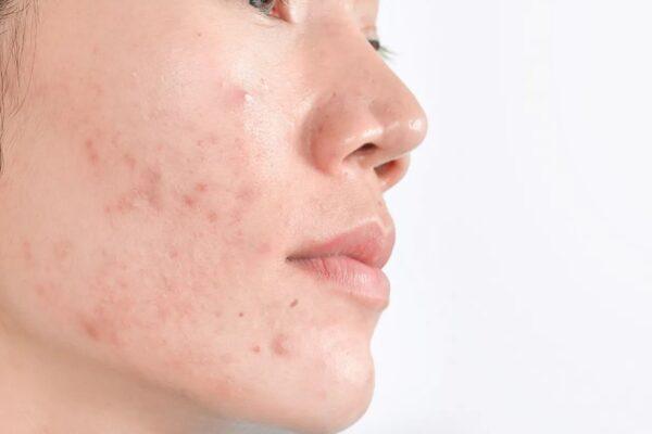 Rekomendasi Skincare untuk Mencerahkan/Bekas Jerawat