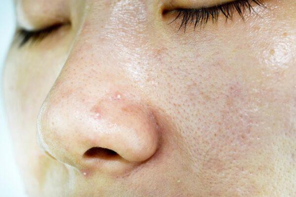 Rekomendasi Skincare untuk Kulit Berminyak, Komedo, dan Berjerawat